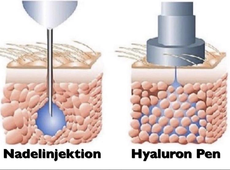 IRI Hyaluron Pen im Beauty House